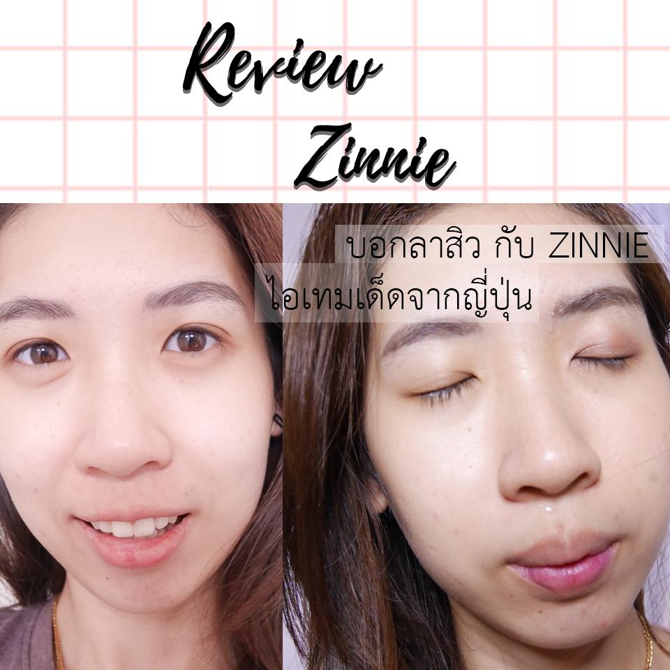review zinnie ส่งตรงจากญี่ปุ่น มาลดสิว หน้าใส กันเถอะ มีแต่ตัวเด็ดๆ ทั้งนั้นเลย